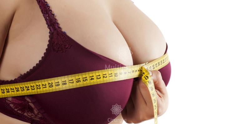 1aab93560 Conheça a redução de mamas e o pós-operatório - Cirurgia.net